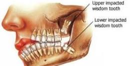 About Wisdom Teeth