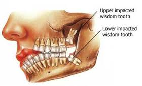 About Wisdom Teeth