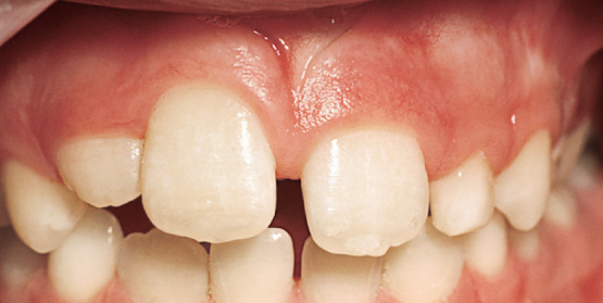 Traumatically Intruded Teeth