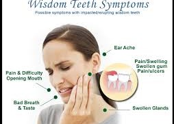 Fact about Wisdom Teeth
