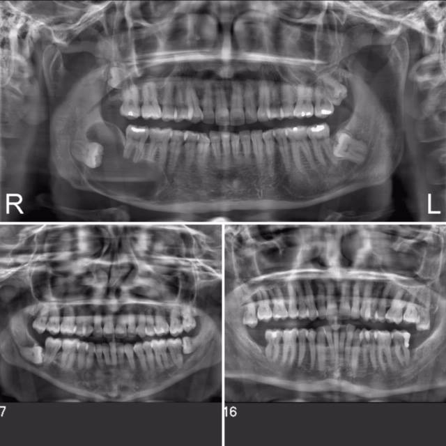 Why do I need to remove my wisdom teeth since it is not bothering me at all?